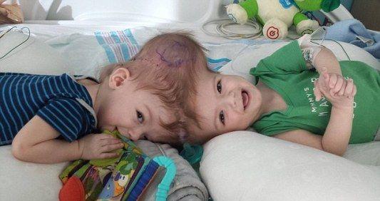 美国13个月大的一对连头婴经历手术,成功分离。